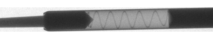 X線観察装置